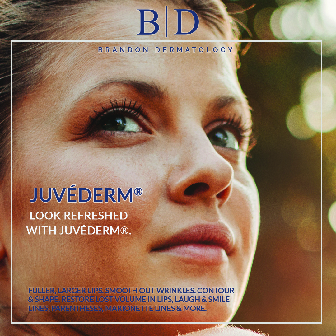Look refreshed with juvederm